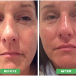 lip-enhancement-dermal-filler
