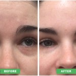 Dermal Filler to treat dark eyes