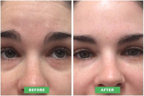 Danielle S Tired Eye Treatment Results 171 Beauty 171 Perfect